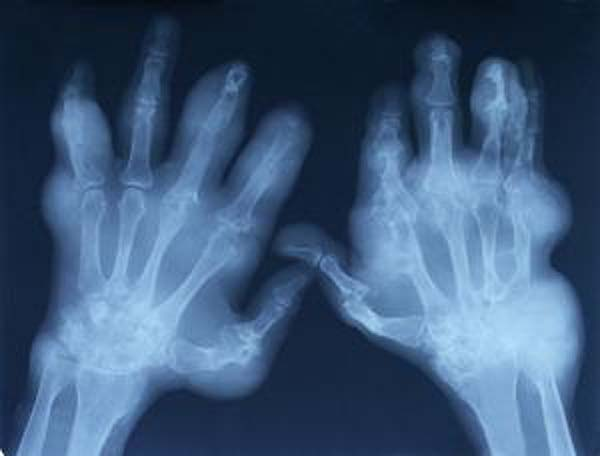 X-ray of an elderly patient with extremely swollen hands from arthiritis